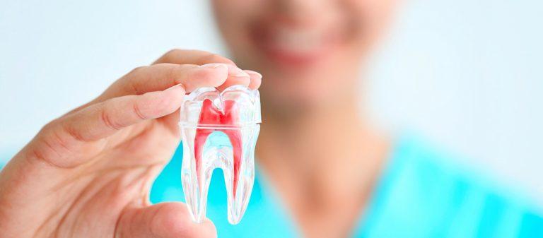 4 incômodos ao fazer um canal dentário