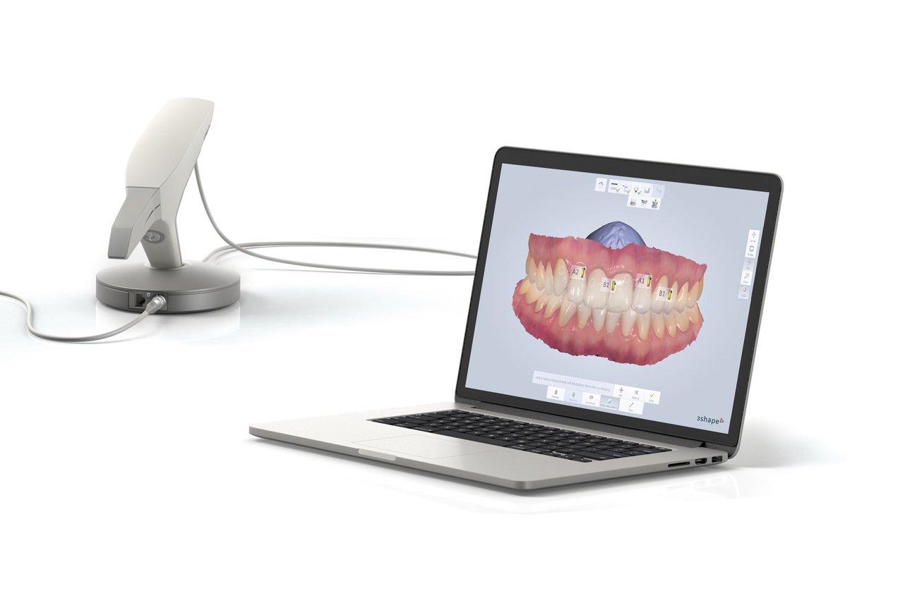 Computador com tela de avaliação de prótese de paciente