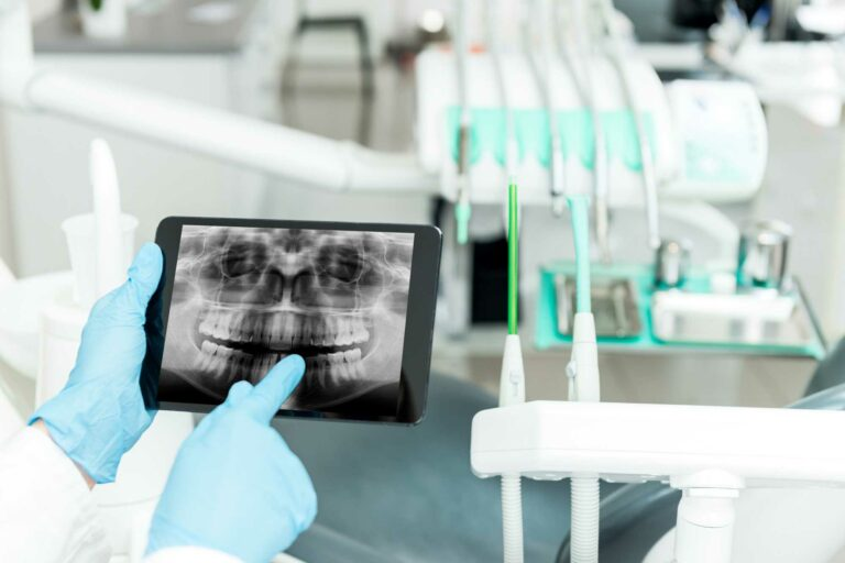 perda óssea dentaria