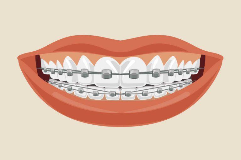 como deixar os dentes retos