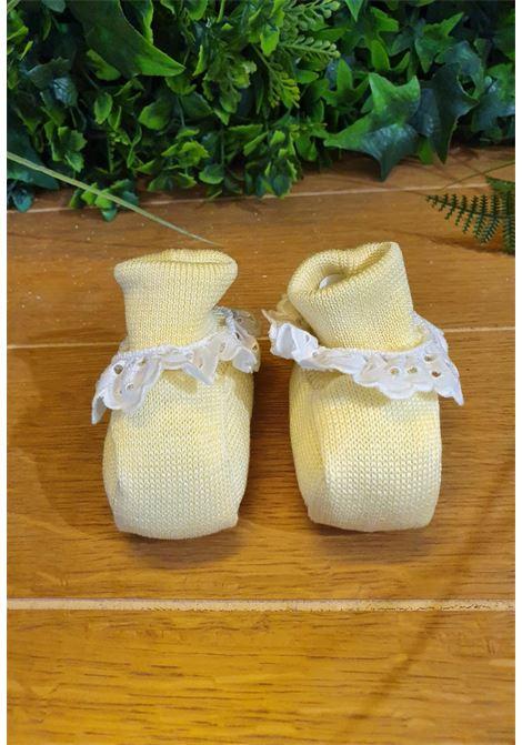 scarpe in cotone gialle con riccetto bianco in pizzo marlu | Scarpe | ES12SUNI