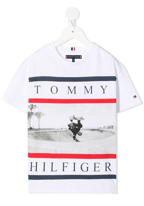 TOMMY HILFIGER |  | KB0KB06528YBR