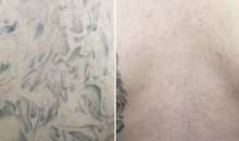 De Luz Medical Aesthetics-Half Off Tattoo Removal!!