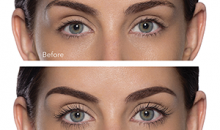Martin Medical-Lash Lift and Tint a $80 value for only $40 at Martin Medical & Esthetics