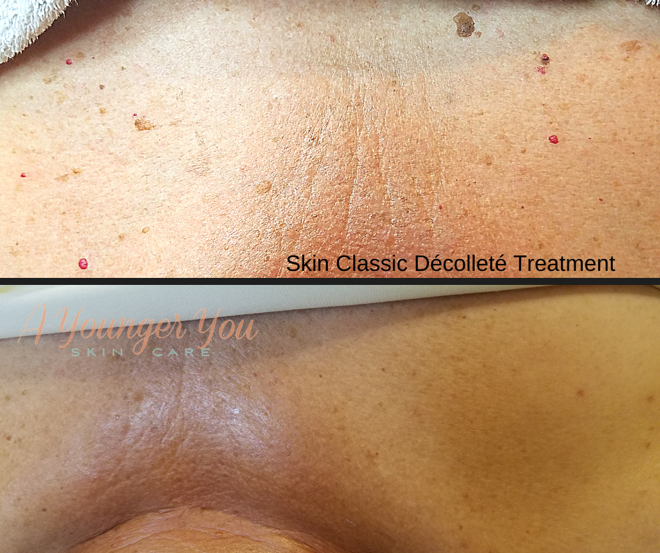 A Younger You Skin Care Decollete & Neck Treatment