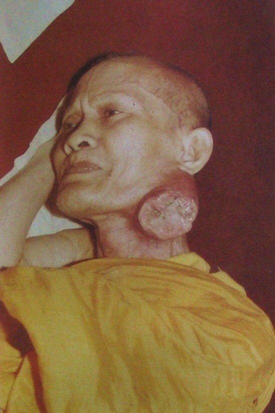 The Great Monk Jao Khun Nor as he suffered with extreme throat cancer, but remained practicing as usual without fail, maintaining complete diligence, without taking a rest.