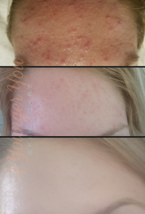 A Younger You Skin Care Acne Treatment before & After