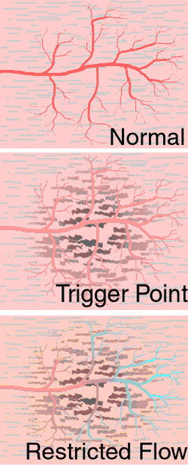 Trigger-Point