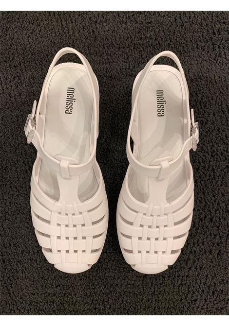 sandali con fibbietta laterale MELISSA | Scarpe | 3350701177