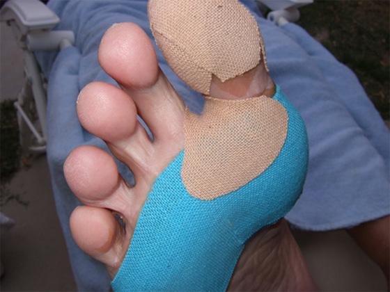 blister care