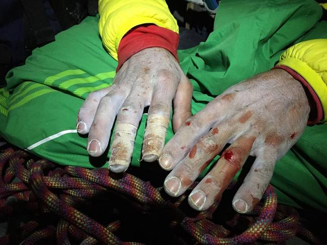 jorgeson fingers