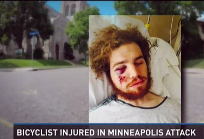 biker-attacked