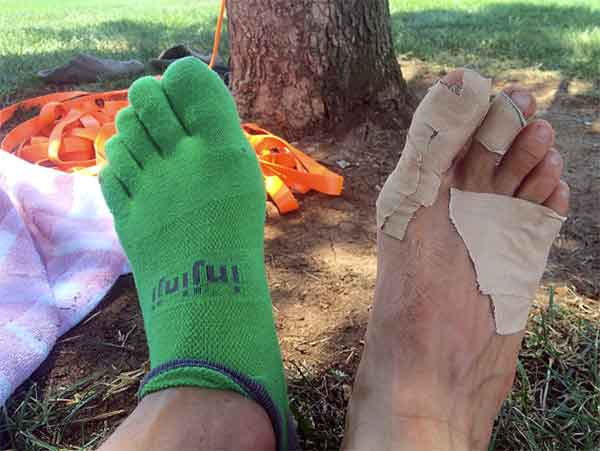 damaged-feet