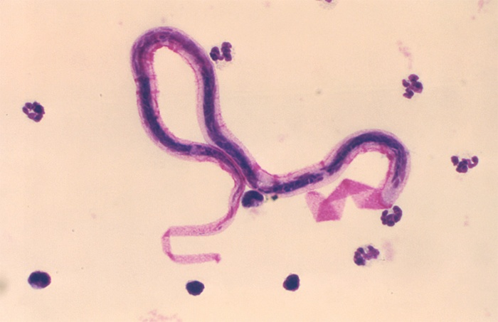 parasites, worms in humans