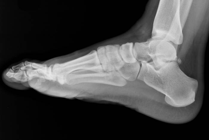 foot ankle x ray