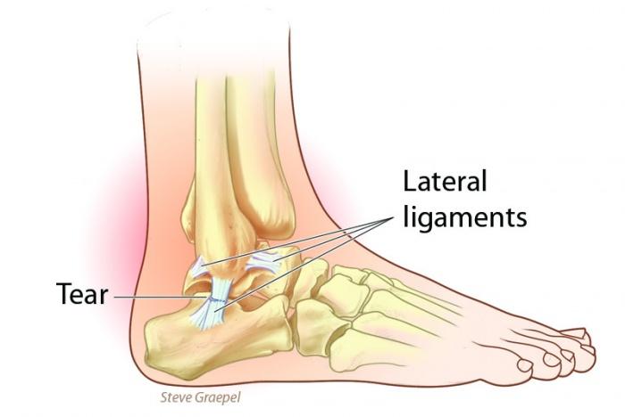 Outdoor Hazards Sprained Ankle Gearjunkie