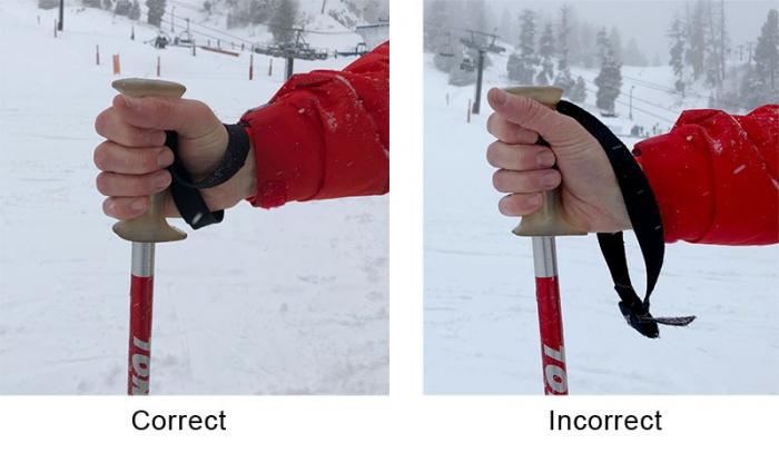 skiers thumb