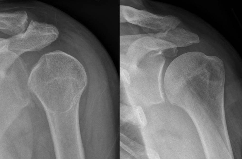 dislocated shoulder x-ray