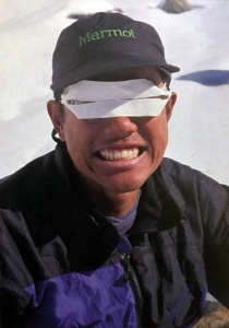 Sunburn On Your Eyes Protecting Against Snow Blindness