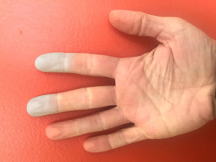 Raynaud's Disease symptoms