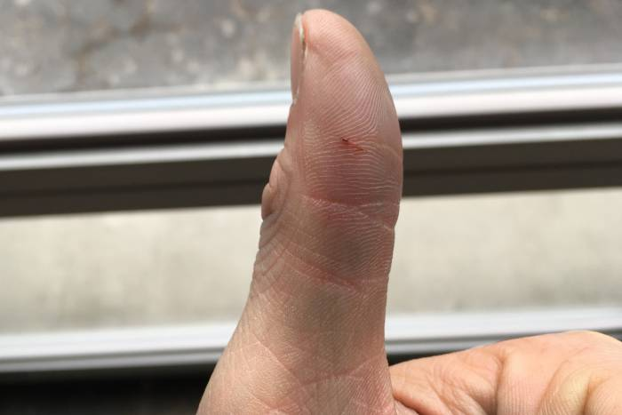 Slashed thumb