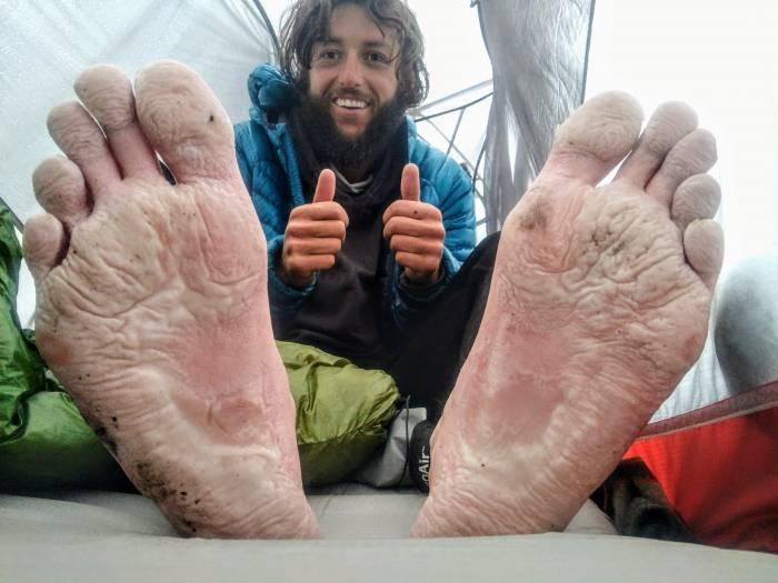 """Jon """"Airborne"""" Schwarze wrinkled feet"""