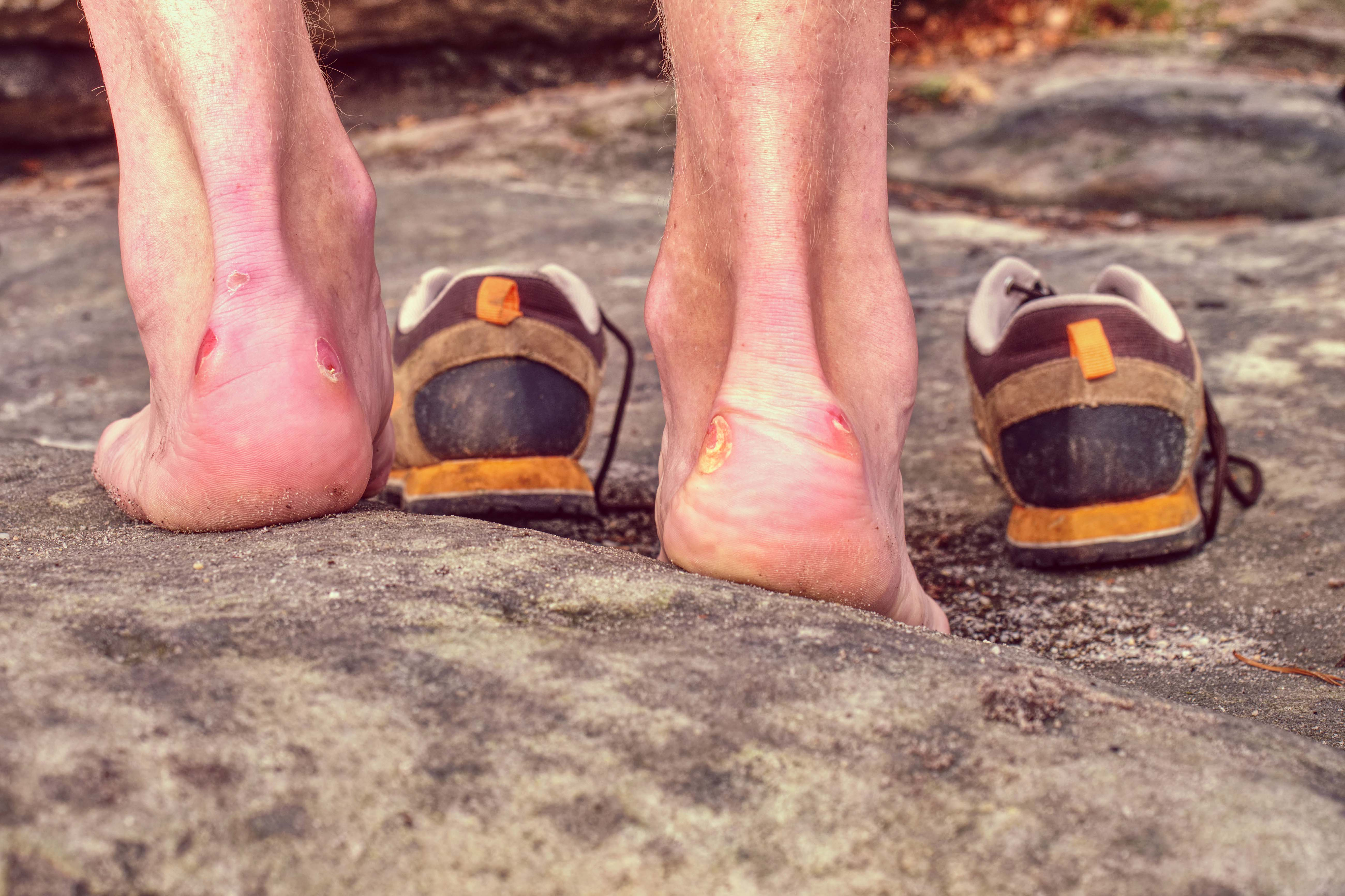 foot care hiking
