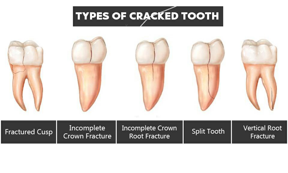 Types of Tooth Fracture