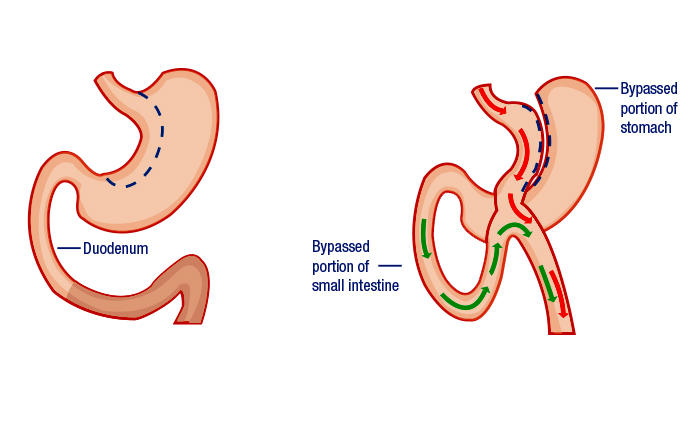 Duodenal Switch With Biliopancreatic Diversion