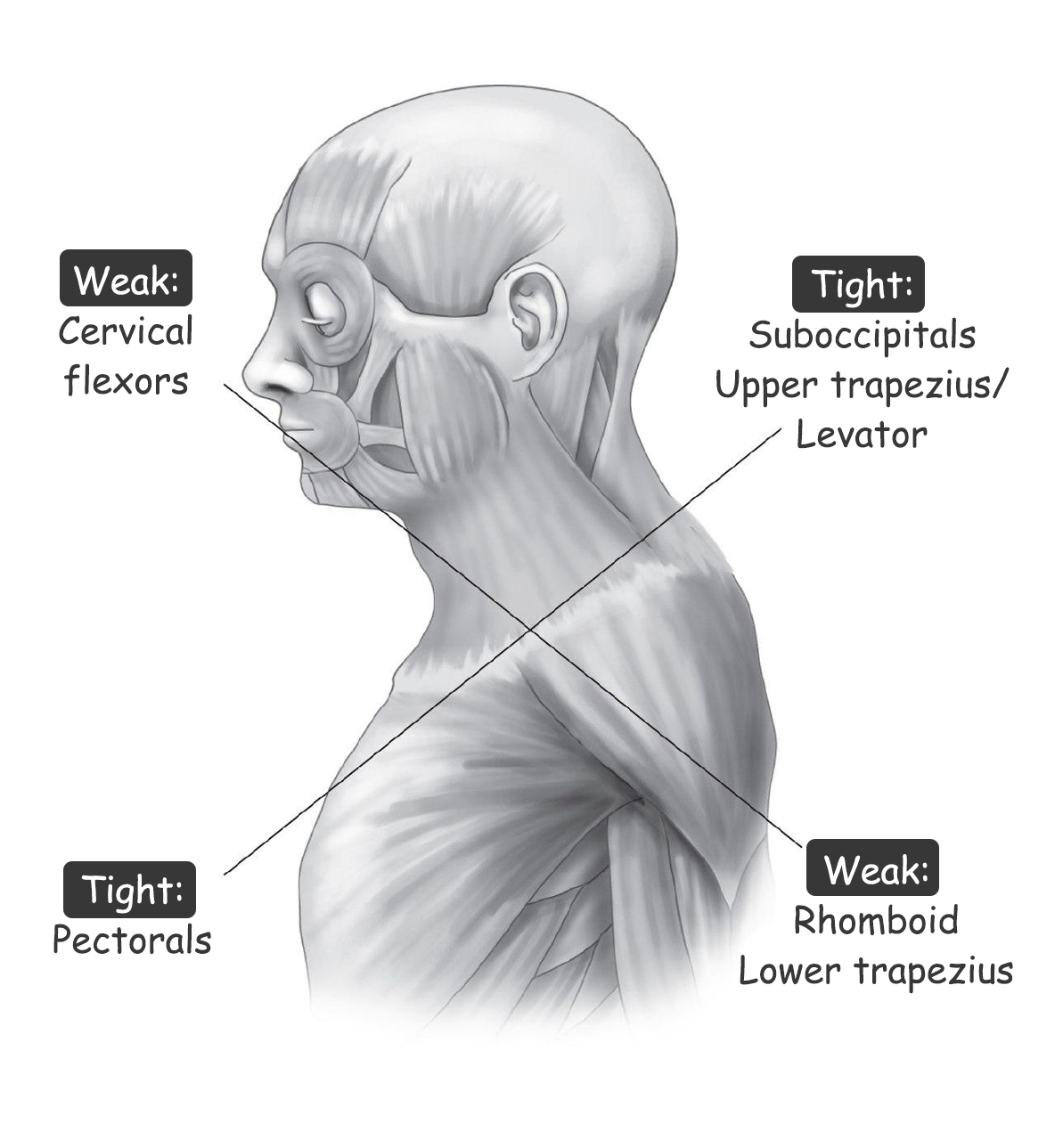 What Are the Muscles Affected in Upper Crossed Syndrome?