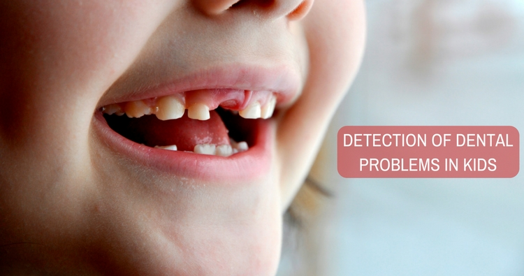 Image: Early Detection of Dental Problems in Kids