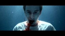 Thomston 'Anaesthetic' music video