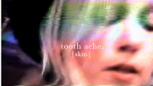 Tooth Ache 'Skin' music video