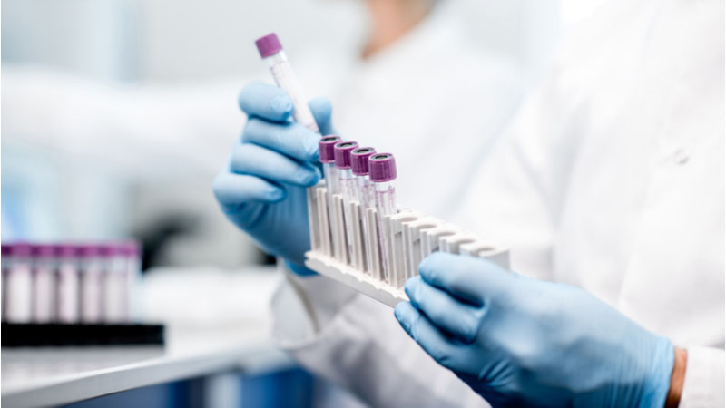 Is Rigel Pharmaceuticals, Inc. (RIGL) a Smart Choice in Biotechnology Wednesday?