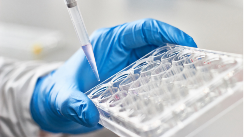 Is Diffusion Pharmaceuticals Inc (DFFN) a Good Choice in Biotechnology Friday?