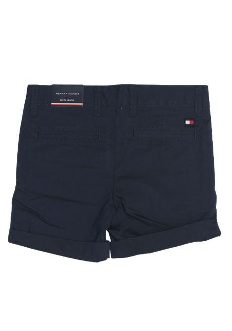 TOMMY HILFIGER | Bermuda pants  | KB0KB05602YBRBLU