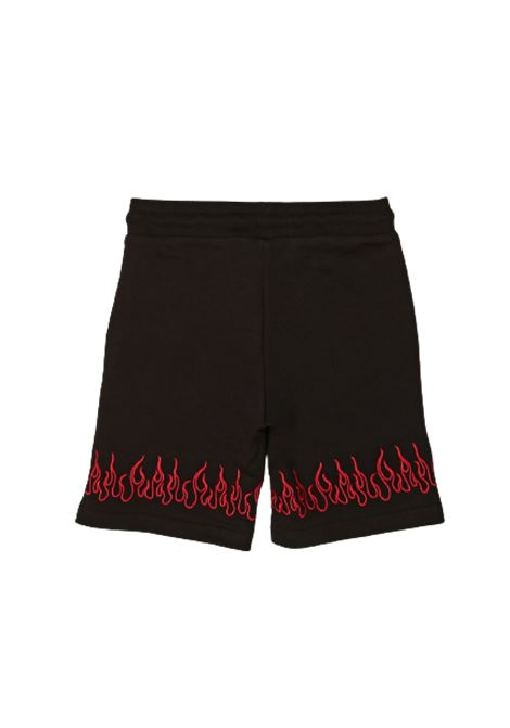 VISION OF SUPER | Bermuda pants  | KB16FLREDNERO