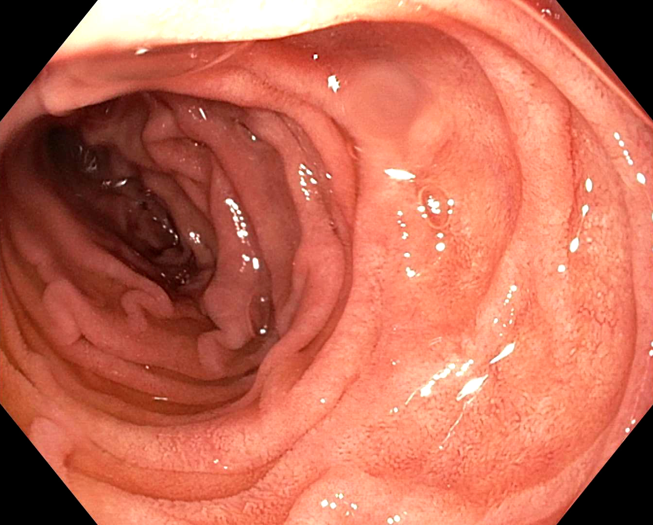 Endoscopic view of 2nd portion of duodenum