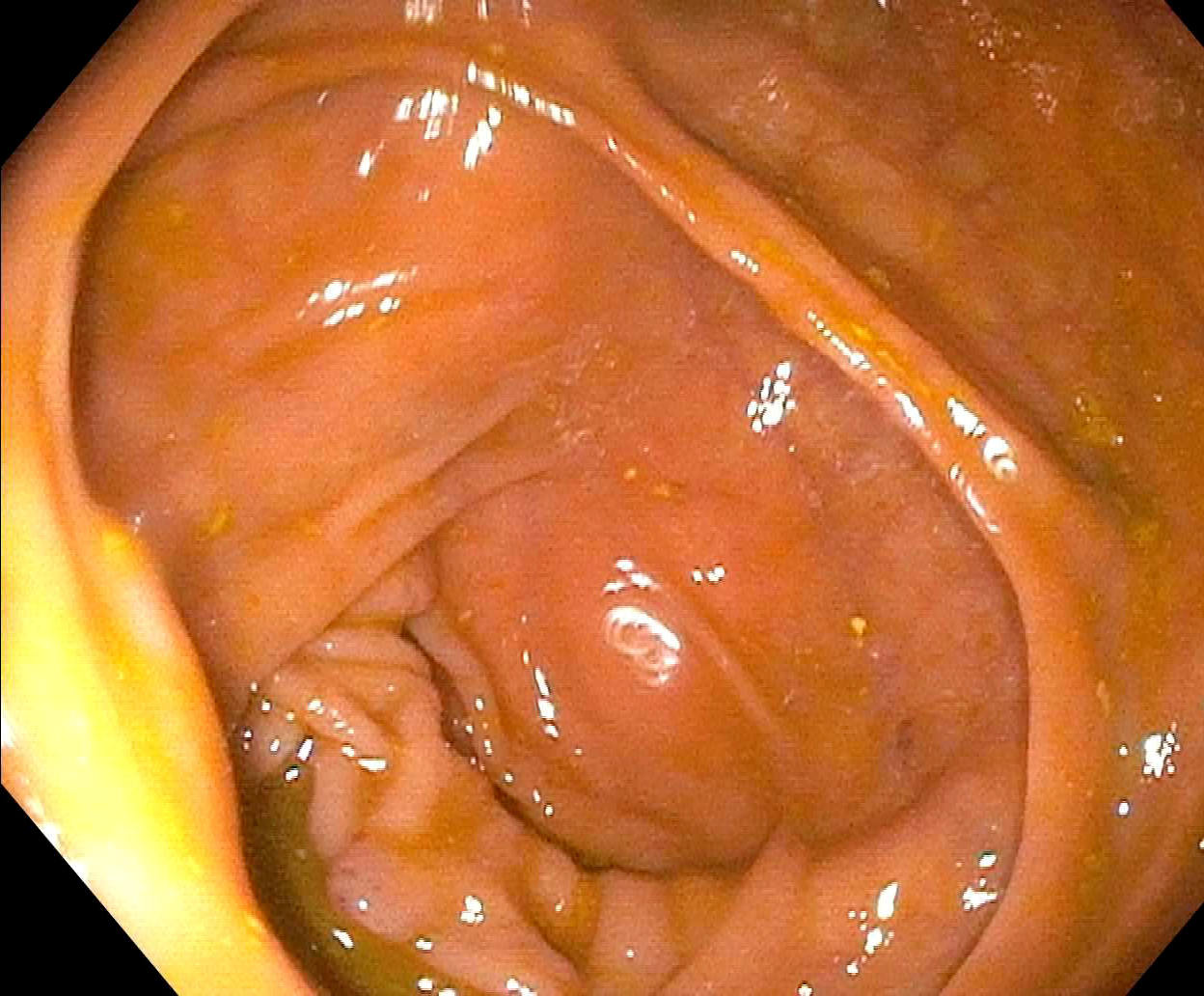 Endoscopic view of cecum