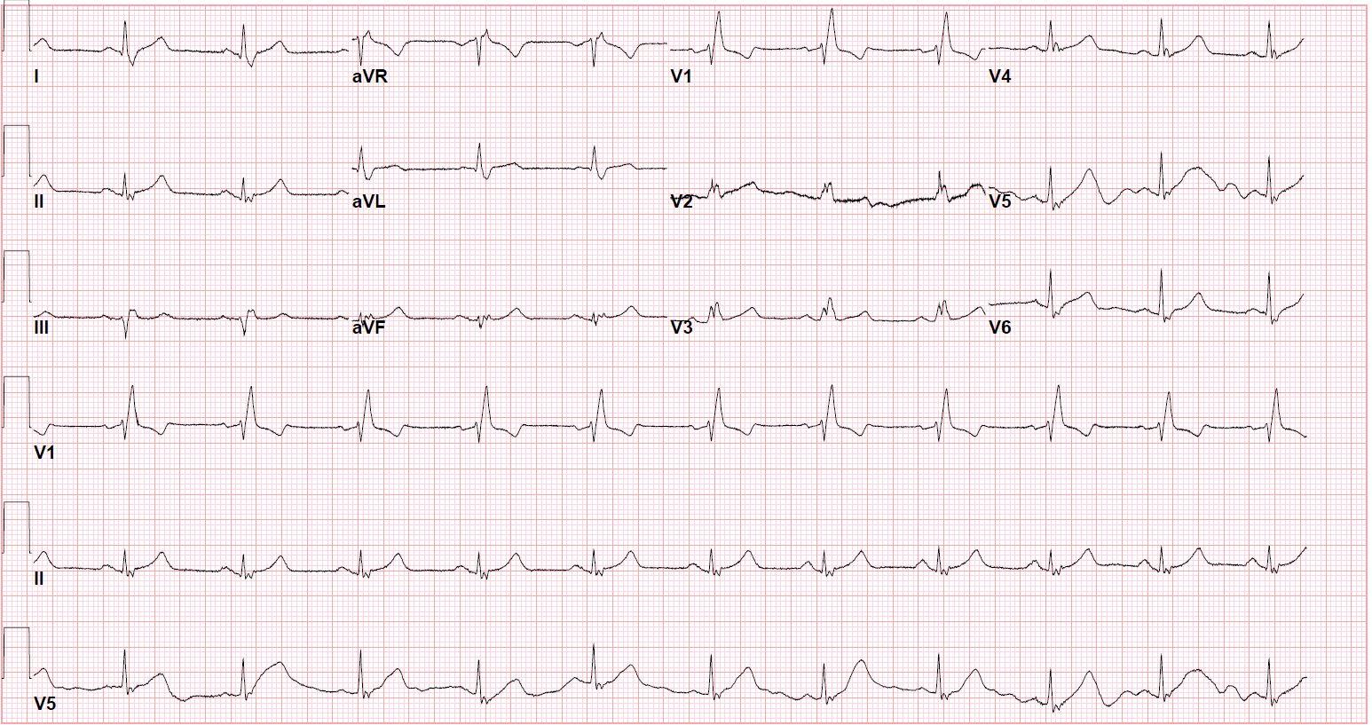 EKG with RBBB