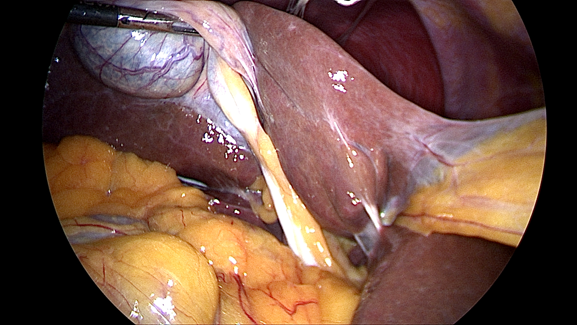 Gallbladder retraction laterally