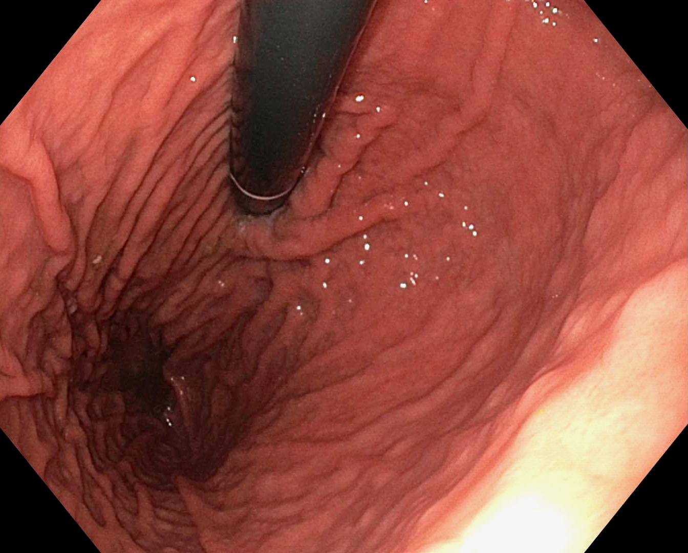 Endoscopic view of gastric cardia and fundus