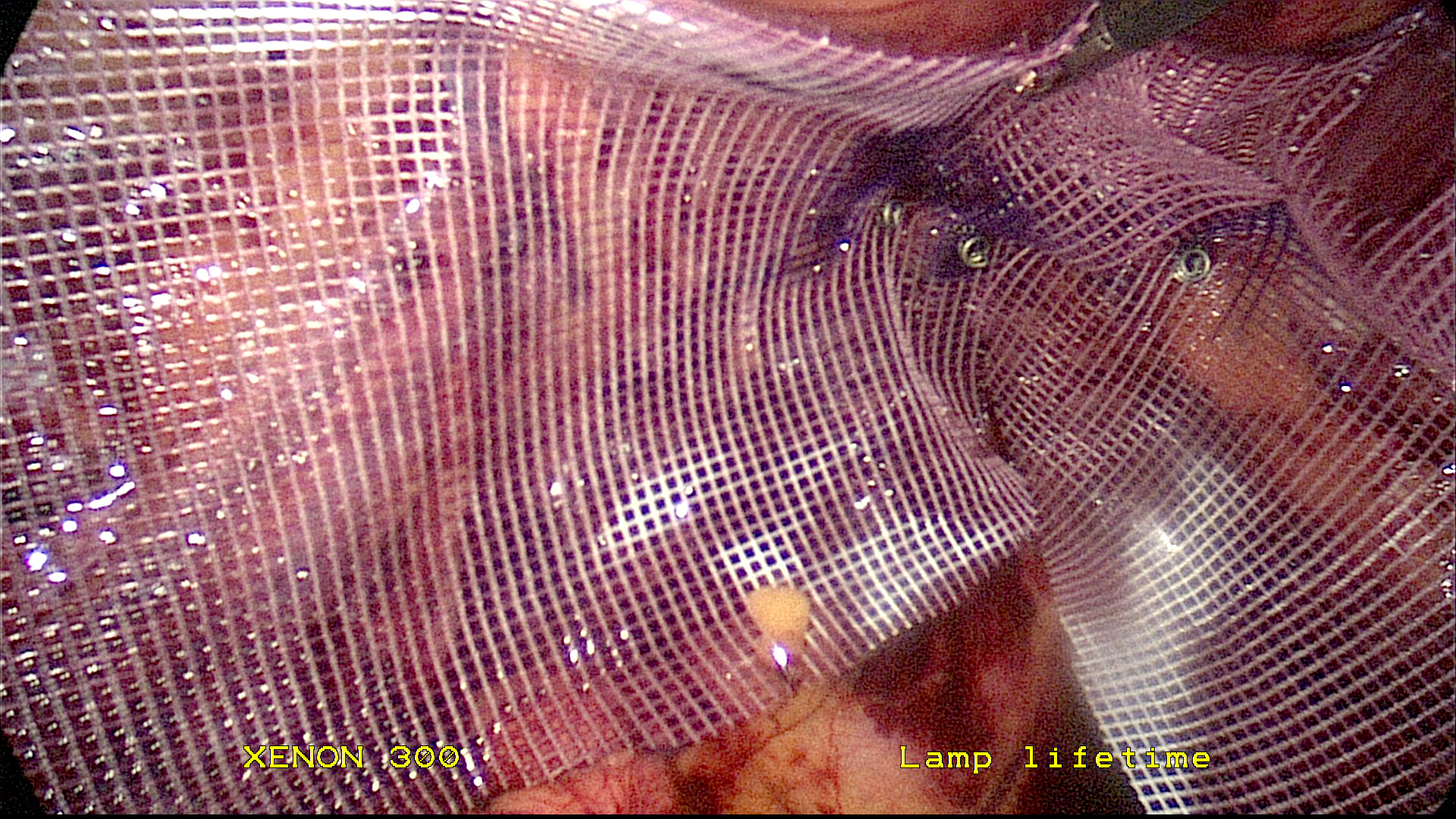 Bilateral inguinal hernia repair with TEPP mesh placement.