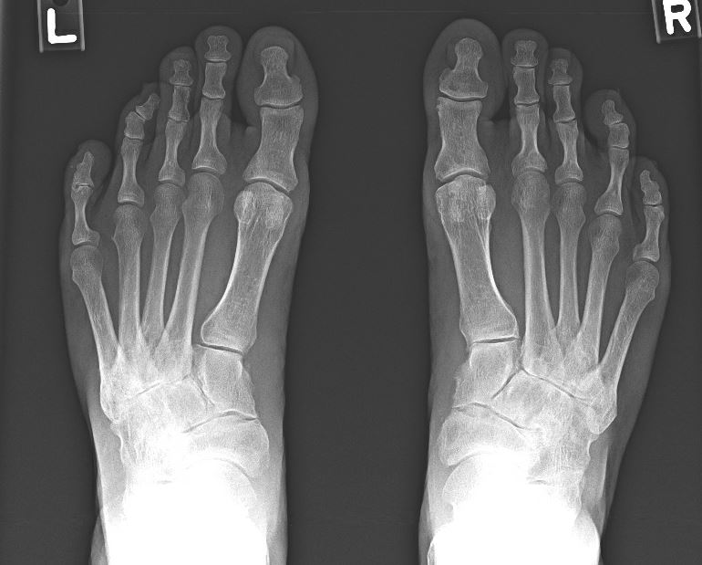 AP view of osteoarthritic feet