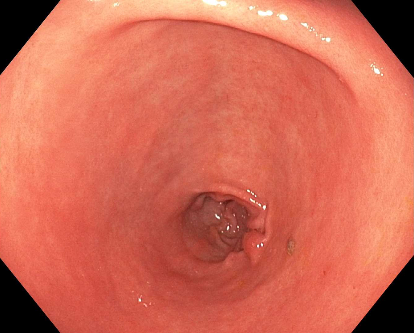 Endoscopic view of Pre-Pyloric Stomach