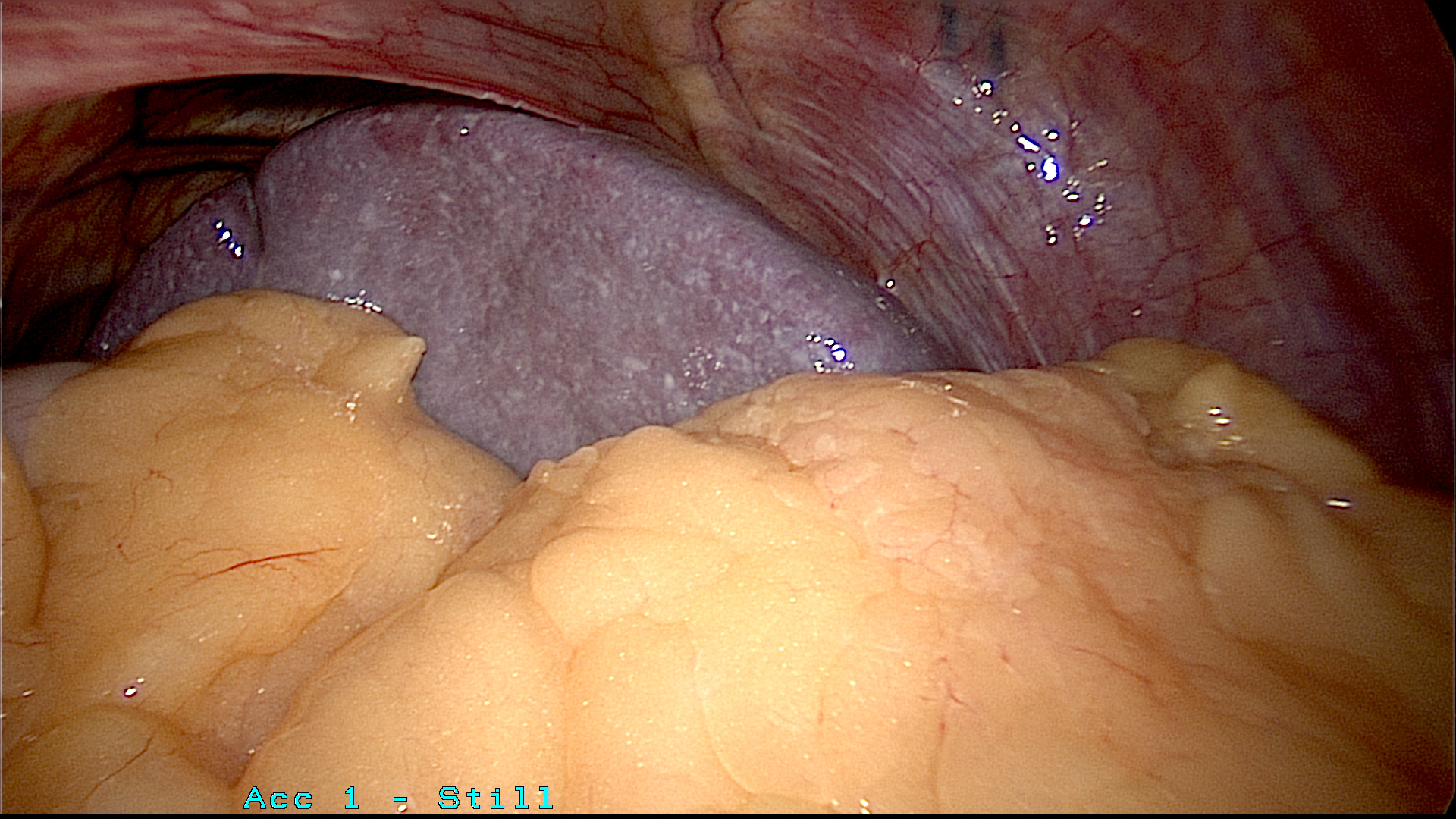 Spleen near the stomach