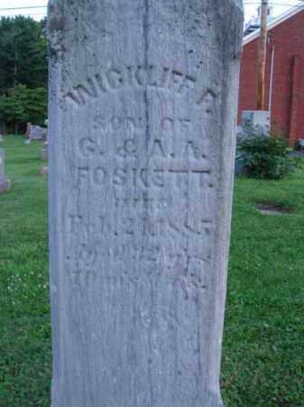 FOSKETT, WICKLIFF F. - Fairfield County, Ohio | WICKLIFF F. FOSKETT - Ohio Gravestone Photos