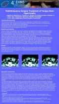 Radiofrequency Surgery Treatment of Tongue Base Hypertrophy PowerPoint PPT Presentation