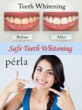 Safe Teeth Whitening PowerPoint PPT Presentation