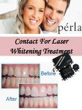 Contact For Laser Whitening Treatment PowerPoint PPT Presentation